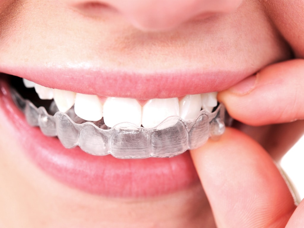 Important Things About Invisalign Treatment